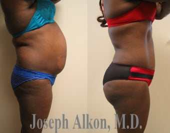 Tummy Tuck, Liposuction, and Fat Transfer to Buttocks (BBL) before 1199969