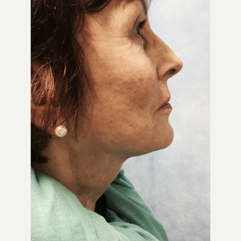 55-64 year old woman treated with Facelift after 3265150