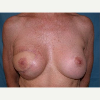 55-64 year old woman treated with Breast Reconstruction after 1585113