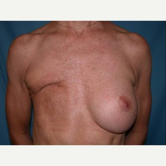 55-64 year old woman treated with Breast Reconstruction before 1585113