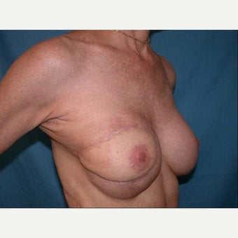 55-64 year old woman treated with Breast Reconstruction 1585113
