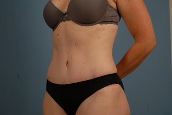Abdominoplasty after 695831