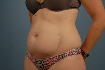 Abdominoplasty before 695831