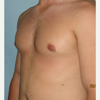 25-34 year old man treated with Male Breast Reduction after 3725371