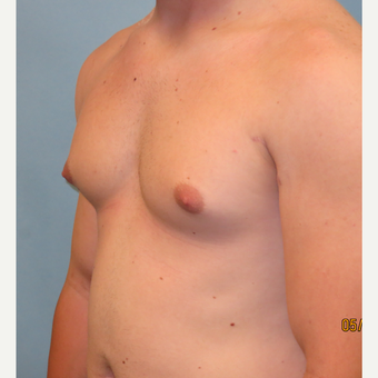 25-34 year old man treated with Male Breast Reduction before 3725371