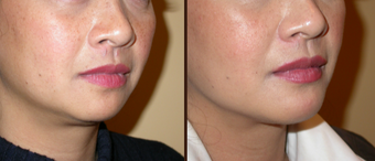 45-54 year old woman treated with Chin Liposuction and chin implant.