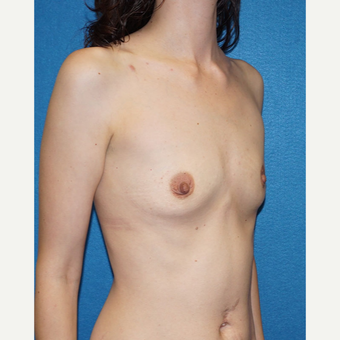 27 year old woman treated with Breast Augmentation before 3576678