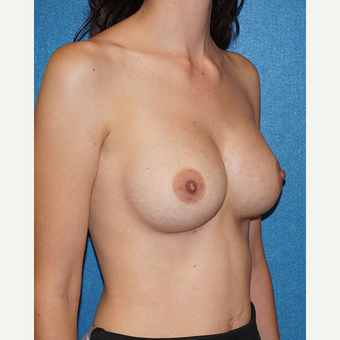 27 year old woman treated with Breast Augmentation after 3576678