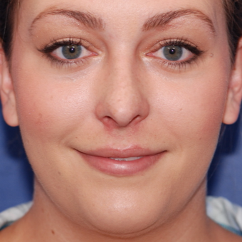 18-24 year old woman treated with Rhinoplasty before 3624105