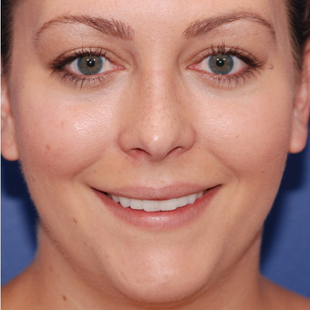 18-24 year old woman treated with Rhinoplasty after 3624105