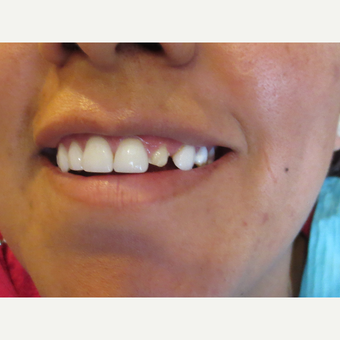 25-34 year old woman treated with Porcelain Veneers before 3338770