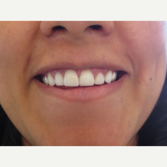 25-34 year old woman treated with Porcelain Veneers after 3338770