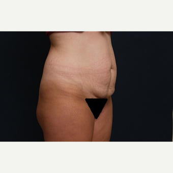 25-34 year old woman treated with Tummy Tuck before 3344887