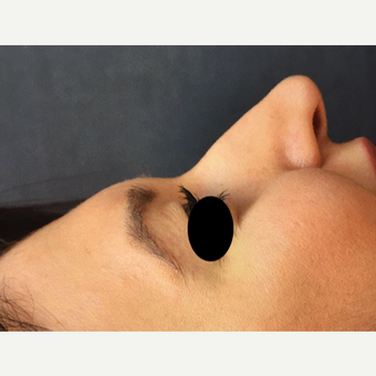 25-34 year old woman treated with Rhinoplasty before 3211374