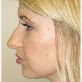 25-34 year old woman treated with Non Surgical Nose Job