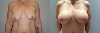 Breast augmentation and breast lift before 1141629