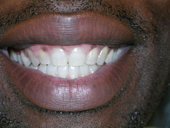 Teeth Spacing Corrected with Lingual Braces after 973922