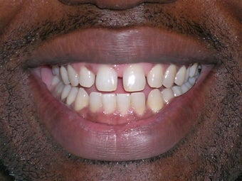 Teeth Spacing Corrected with Lingual Braces