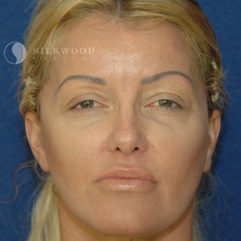 35-44 year old woman treated with Facelift after 3760477