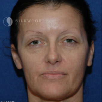 35-44 year old woman treated with Facelift before 3760477