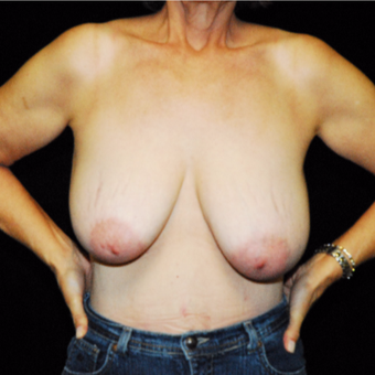 35-44 year old woman treated with Breast Lift before 3142439