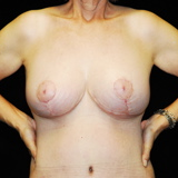 35-44 year old woman treated with Breast Lift after 3142439