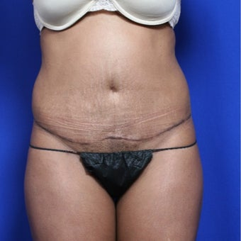 25-34 year old woman treated with Tummy Tuck after 2011711