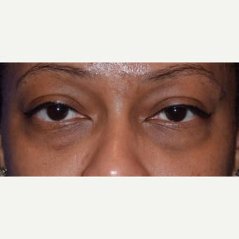 35-44 year old woman treated with lower blepharoplasty for eye bags. before 3398382