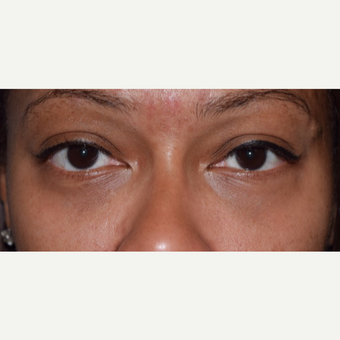 35-44 year old woman treated with lower blepharoplasty for eye bags. after 3398382