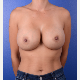 35-44 year old woman treated with Breast Implant Revision after 3804936