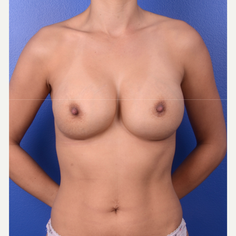 35-44 year old woman treated with Breast Implant Revision before 3804936