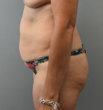 45-54 year old woman treated with Liposuction before 3294053