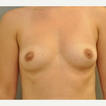 Breast Augentation before 3412400