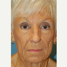 65-74 year old woman treated with Mohs Surgery after 3389161