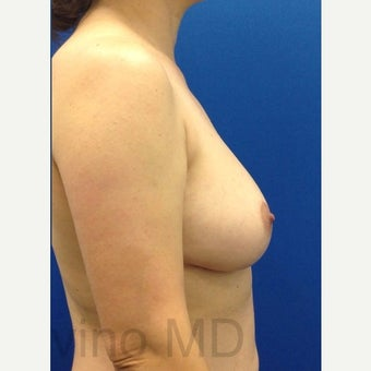 45-54 year old woman treated with Breast Fat Transfer after 2119213
