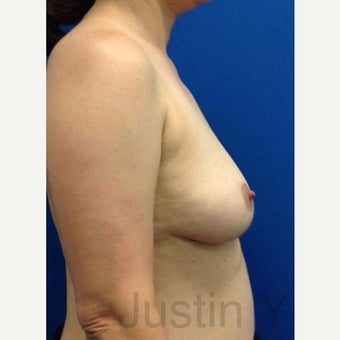 45-54 year old woman treated with Breast Fat Transfer before 2119213