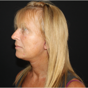 55-64 year old woman treated with SMAS Facelift after 3493657