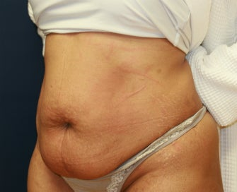 Tummy Tuck before 953409