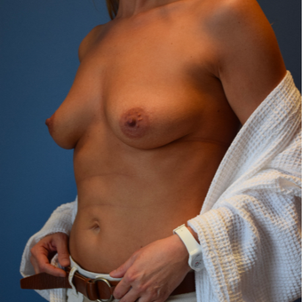 35-44 year old woman treated with Breast Augmentation before 3540721