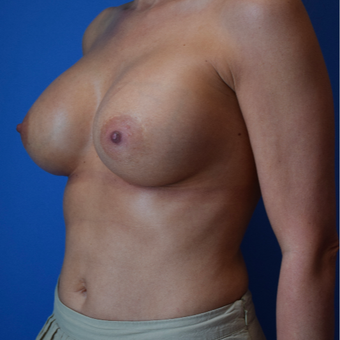 35-44 year old woman treated with Breast Augmentation after 3540721