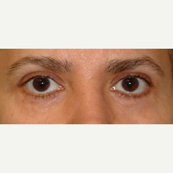 30 y.o. treated with 4 lid blepharoplasty after treatment elsewhere