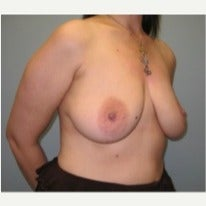 35-44 year old woman treated with Breast Implant Removal 1645806