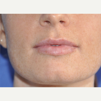 25-34 year old woman treated with Lip Augmentation after 3219257