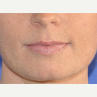 25-34 year old woman treated with Lip Augmentation before 3219257