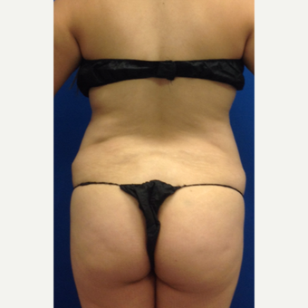 35-44 year old woman treated with Brazilian Butt Lift before 3220614