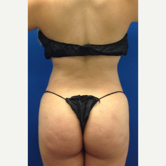 35-44 year old woman treated with Brazilian Butt Lift after 3220614