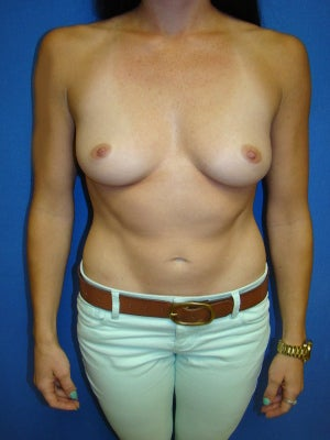Breast Augmentation, Breast Enhancement, Silicone gel Implants before 1454060