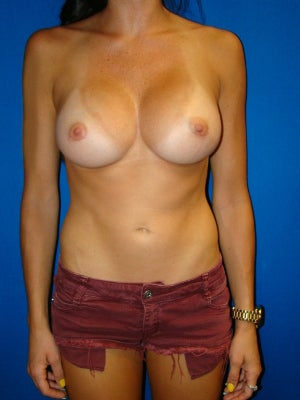 Breast Augmentation, Breast Enhancement, Silicone gel Implants after 1454060