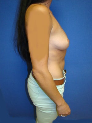 Breast Augmentation, Breast Enhancement, Silicone gel Implants 1454060