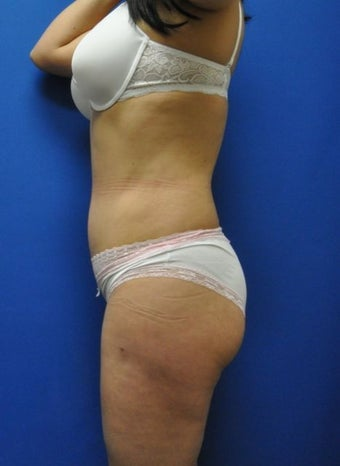 Hourglass Tummy Tuck by Dr. Wilberto Cortes 954386